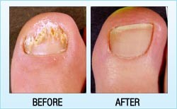 Nail Fungus Treatments Before and After